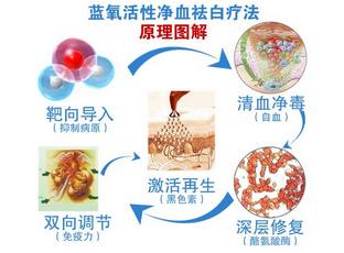 蓝氧自体免疫激活祛白疗法
